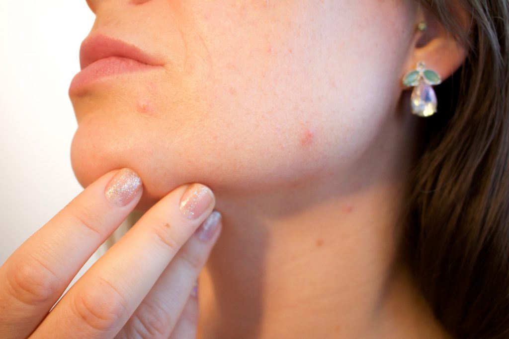 מחלת עור מחלת מקצוע