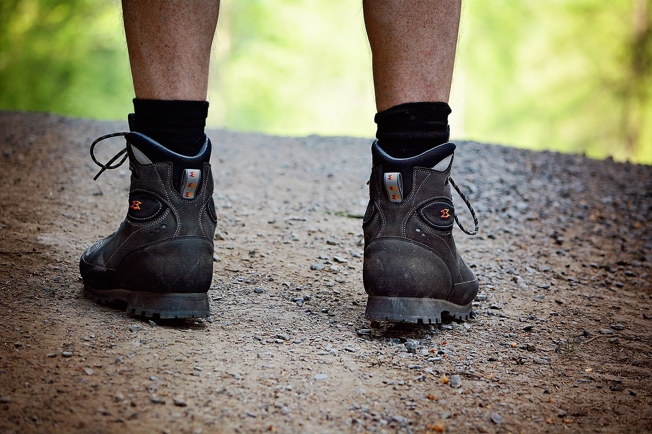 רגליים של עובד שסובל מדליות ברגליים כתוצאה מעבודה